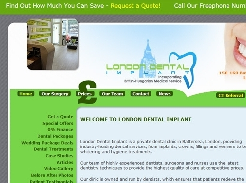 https://www.london-dental-implant.co.uk/ website